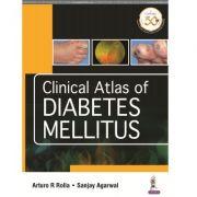 Clinical Atlas of Diabetes Mellitus