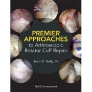 Premier Approaches to Arthroscopic Rotator Cuff Repair