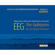 Atlas of electroencephalography Volume 2: The Epilepsies