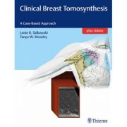 Clinical Breast Tomosynthesis