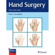 Hand Surgery