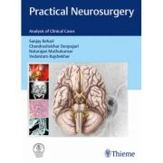 Practical Neurosurgery