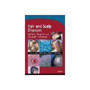Hair and Scalp Diseases: Medical, Surgical, and Cosmetic Treatments
