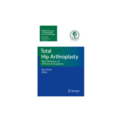 Total Hip Arthroplasty  Wear Behaviour of Different Articulations