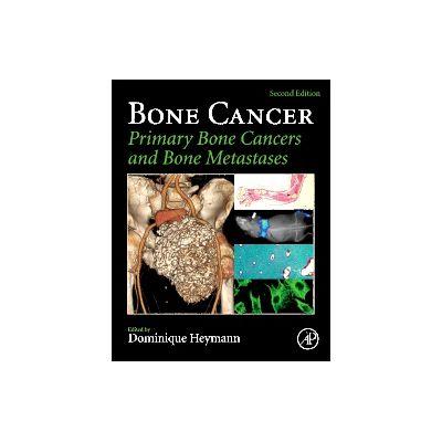 Bone Cancer Primary Bone Cancers and Bone Metastases