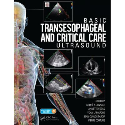Basic Transesophageal and Critical Care Ultrasonography