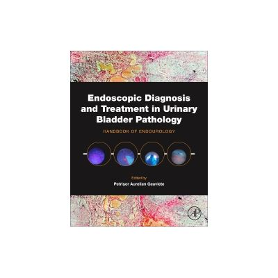 Endoscopic Diagnosis and Treatment in Urinary Bladder Pathology