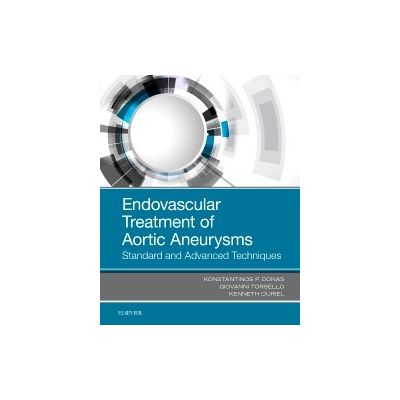 Endovascular Treatment of Aortic Aneurysms, Standard and Advanced Techniques