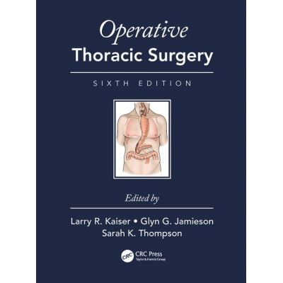 Operative Thoracic Surgery