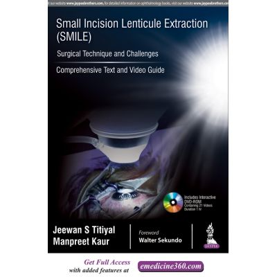 Small Incision Lenticule Extraction (SMILE): Surgical Technique and Challenges