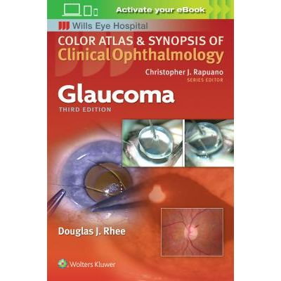 Glaucoma, Color Atlas and Synopsis of Clinical Ophthalmology