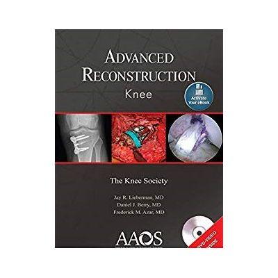 Advanced Reconstruction: Knee