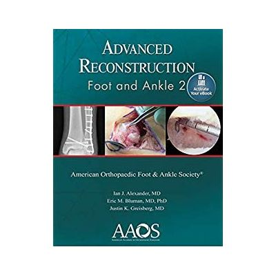 Advanced Reconstruction: Foot and Ankle 2