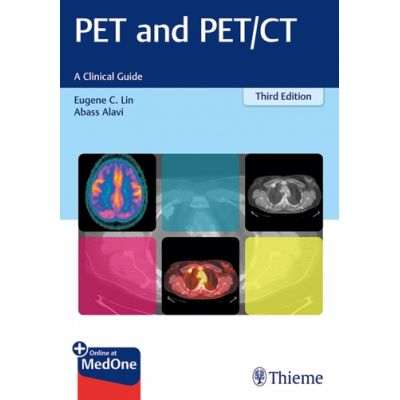 PET and PET/CT