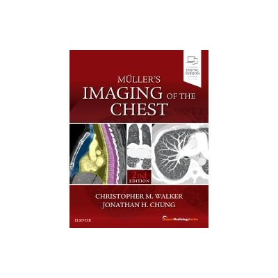 Muller's Imaging of the Chest