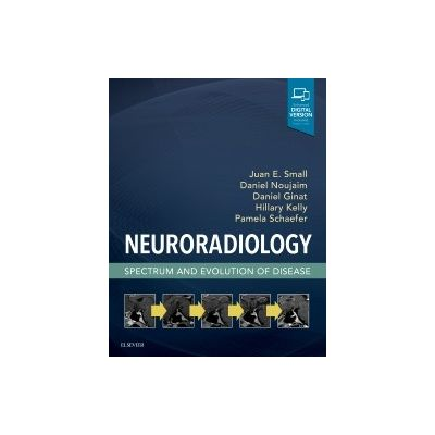 Neuroradiology,