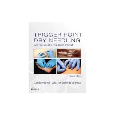 Trigger Point Dry Needling