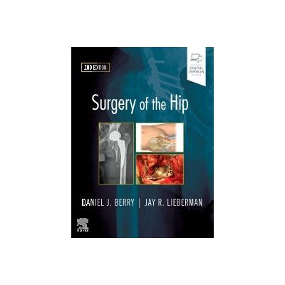 Surgery of the Hip