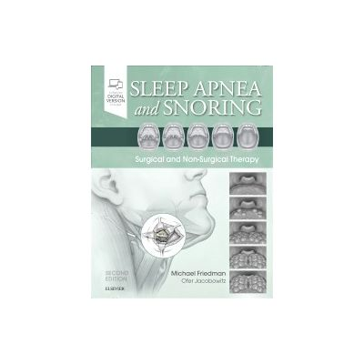 Sleep Apnea and Snoring,  Surgical and Non-Surgical Therapy