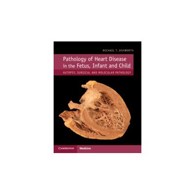 Pathology of Heart Disease in the Fetus, Infant and Child