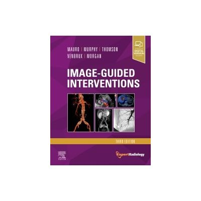 Image-Guided Interventions, Expert Radiology Series