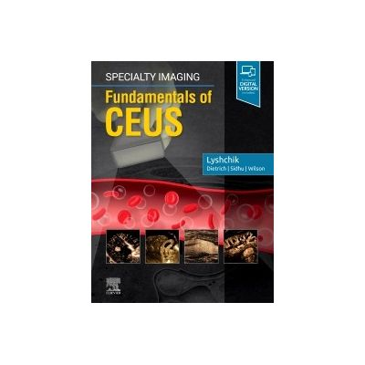 Specialty Imaging: Fundamentals of CEUS