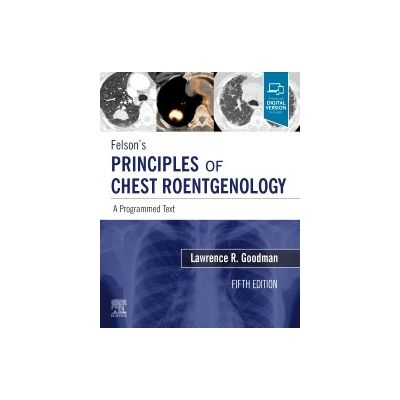 Felson's Principles of Chest Roentgenology, A Programmed Text,