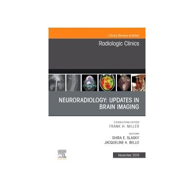 Neuroradiology, An Issue of Radiologic Clinics of North America