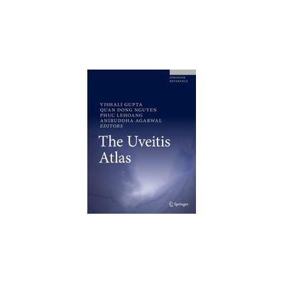 The Uveitis Atlas