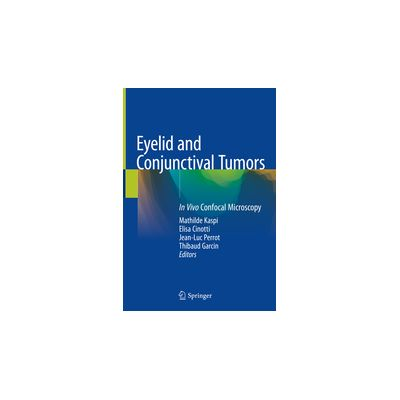 Eyelid and Conjunctival Tumors