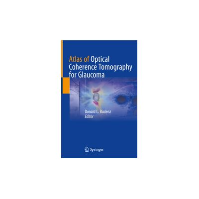 Atlas of Optical Coherence Tomography for Glaucoma