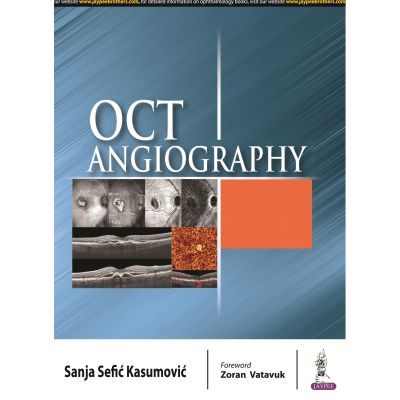 OCT Angiography