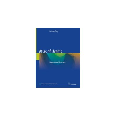Atlas of Uveitis