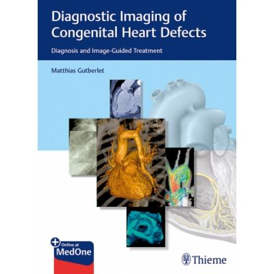 Diagnostic Imaging of Congenital Heart Defects Diagnosis and Image-Guided Treatment