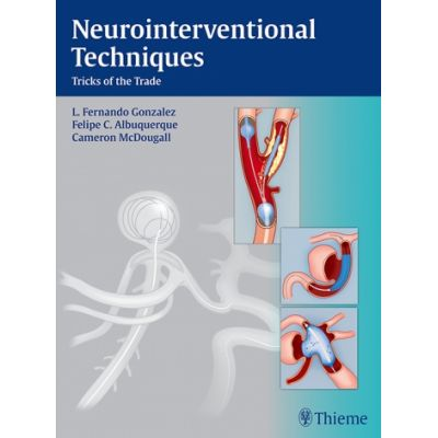 Neurointerventional Techniques Tricks of the Trade