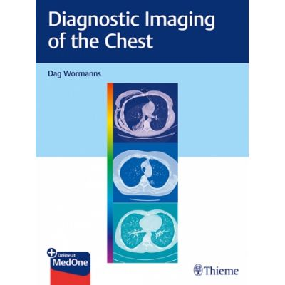 Diagnostic Imaging of the Chest