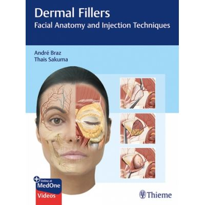 Dermal Fillers