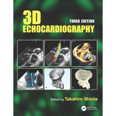 3D Echocardiography