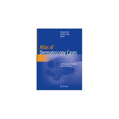 Atlas of Dermatoscopy Cases Challenging and Complex Clinical Scenarios