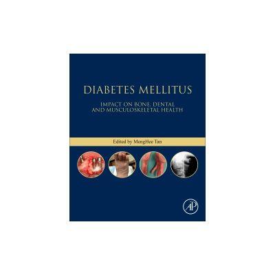 Diabetes Mellitus Impact on Bone, Dental and Musculoskeletal Health