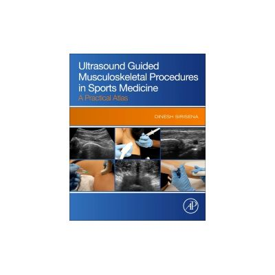 Ultrasound Guided Musculoskeletal Procedures in Sports Medicine, A Practical Atlas