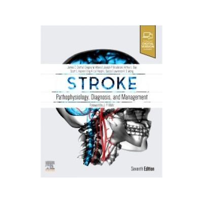 Stroke,  Pathophysiology, Diagnosis, and Management